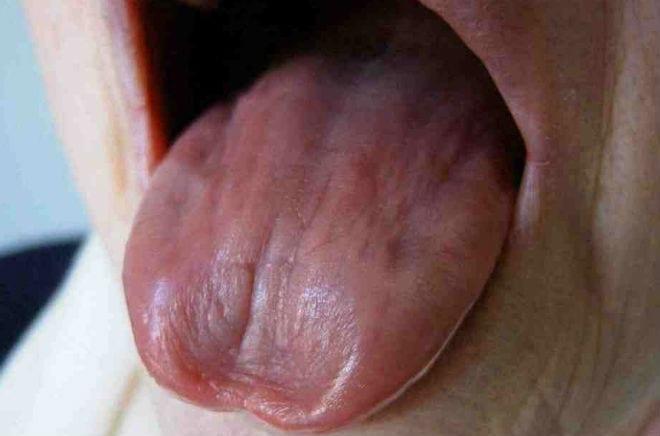 El sindrome de Sjogren afecta al 3 por ciento de la poblacion