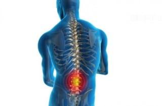 Lumbalgia dolor lumbar
