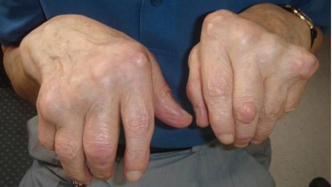 Nuevo medicamento biológico para la artritis reumatoide