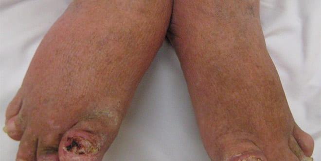Artritis psoriasica, síntomas pies