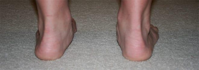 Artritis tipos: artritis juvenil