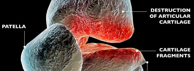 Artrosis, destrucción cartílago articular