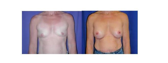 Aumento mama. Antes y después