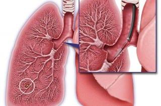 cáncer pulmón clasificador genómico