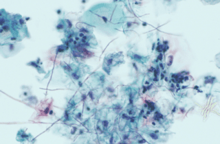 infección por candidiasis