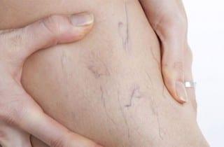 Causas que originan las varices en las piernas
