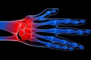 Curar una autoinmune