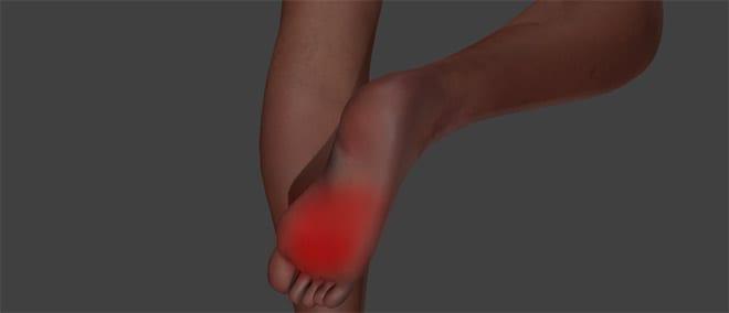 Diabetes neuropatía diabética dolor en los pies