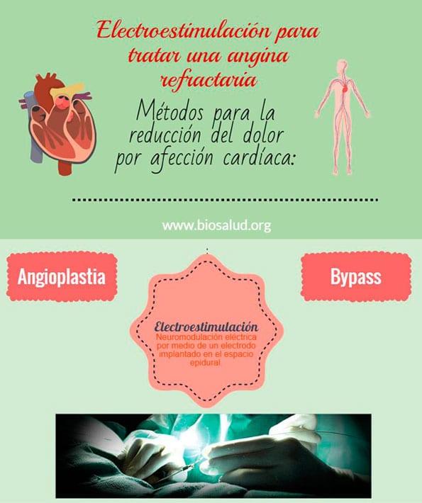 Electroestimulación para tratar una angina refractaria