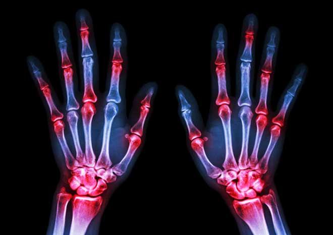 enfermedades autoinmunes, artritis reumatoide