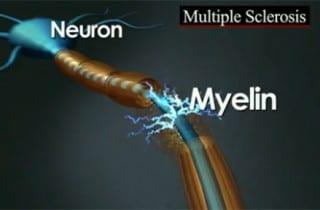 Esclerosis múltiple. Curación. Mielina