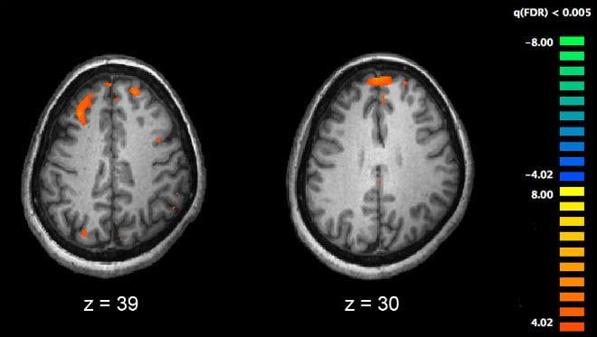 Complejidad genética de la esquizofrenia