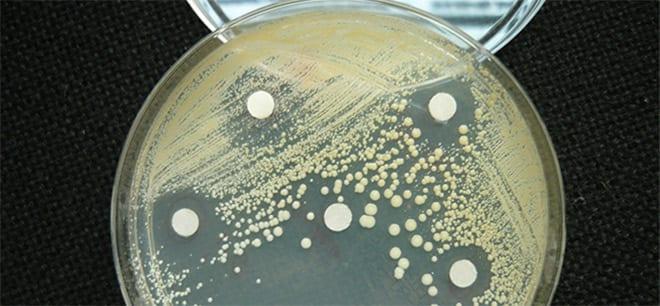 Infecciones y hongos vaginales. Aromatograma