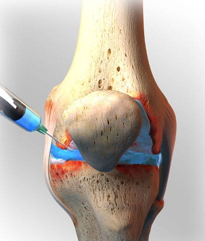 inyeccion-plasma-rodilla