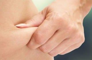 liposucción cirugía estética