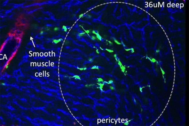 Medicina regenerativa corazón. Estudio pericitos en Universidad de Stanford