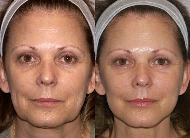 minilifting facial