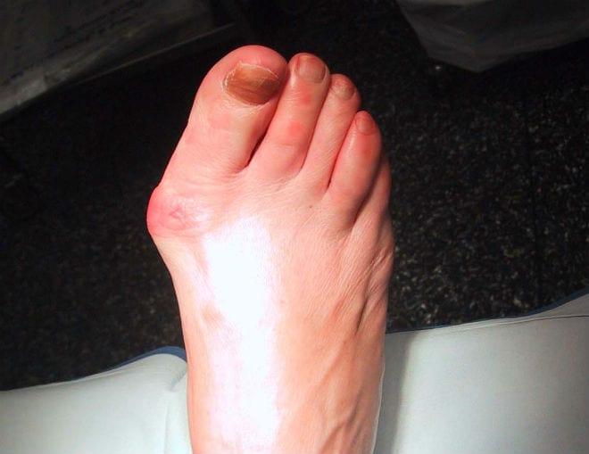 Regeneración de tejidos en artrosis complementará a las prótesis