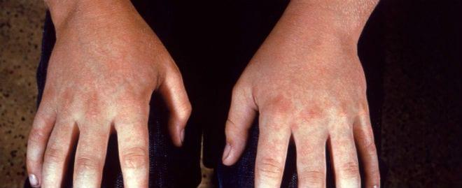 reuma-medicina biologica para frenar reumatismo