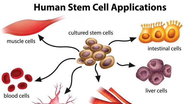 Terapia celular, aplicaciones, celulas madre