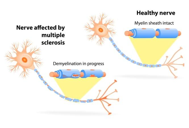 Nervios afectados por Esclerosis múltiple