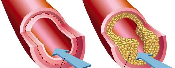Ulceras isquémicas. Ateroesclerosis. Venas obstruidas